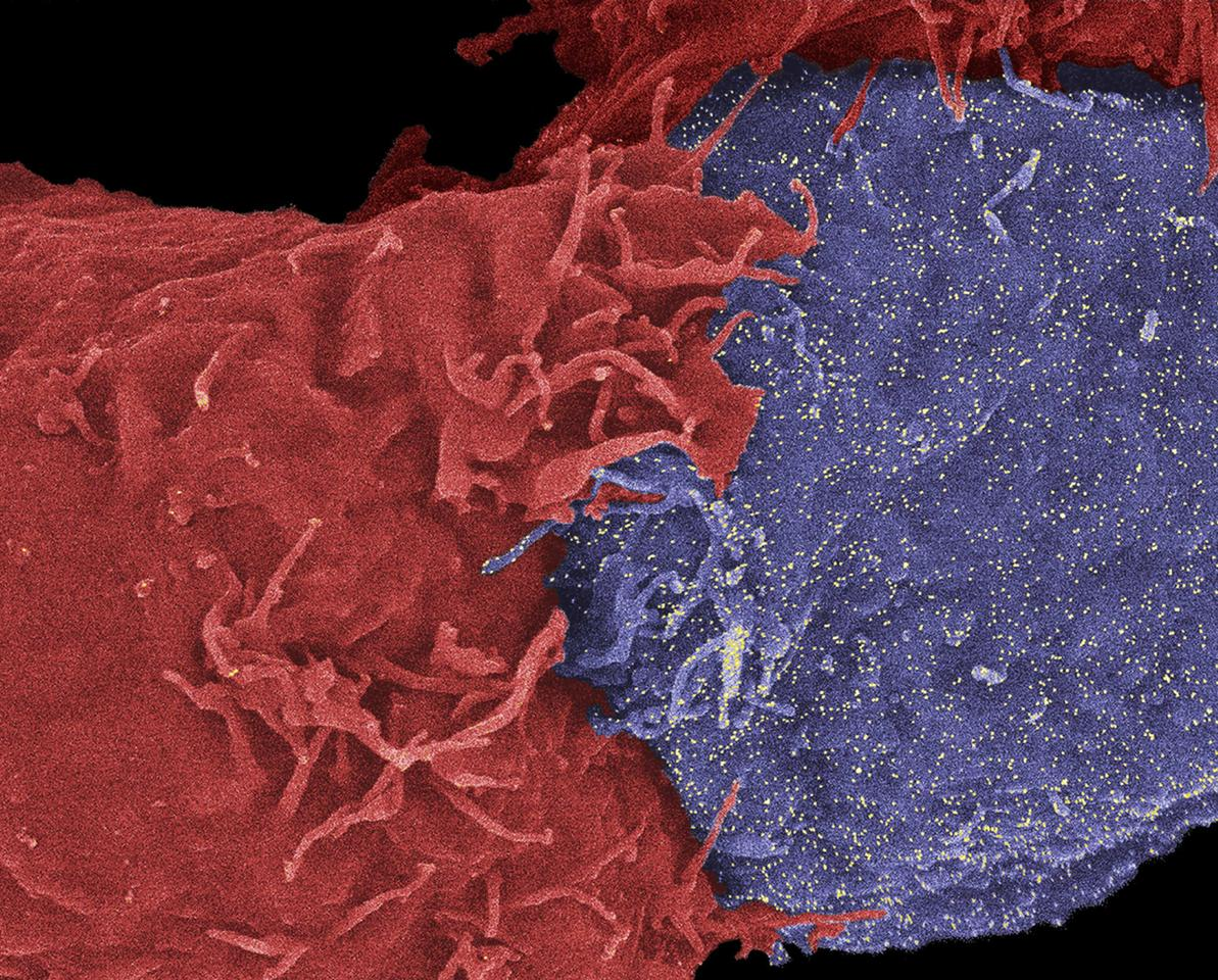 Immunotherapy treatments help natural killer cells (above in red), hunt down and destroy cancer cells (above in blue), but this new type of treatment may be negatively affected by antibiotics