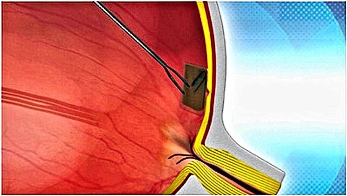 Drawing of a Bio-Retina being inserted into an eye and affixed to the AMD damaged retina by a nano-forceps