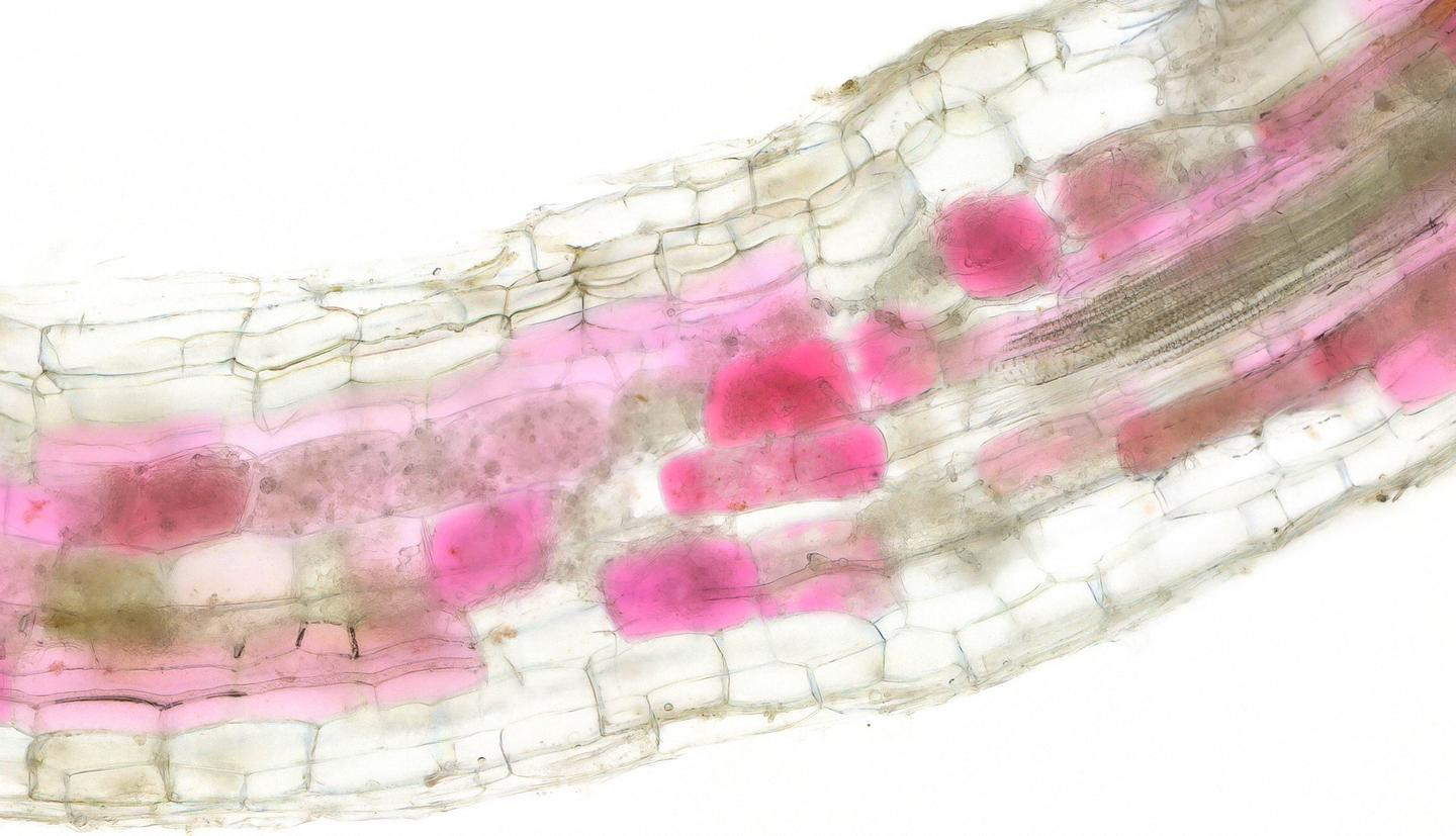 Root cells turn red when colonized by beneficial arbuscular mycorrhiza fungi