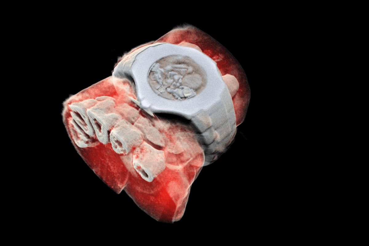 Using CERN technology, Mars Bioimaging has created the first 3D, color X-ray images of the human body