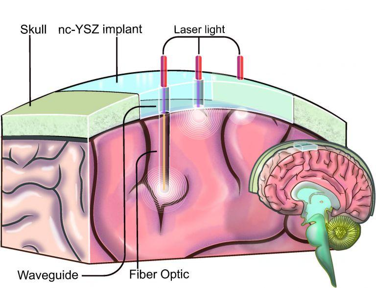 An artist's impression of how the implant could deliver laser light to where it's needed to treat various conditions in the brain