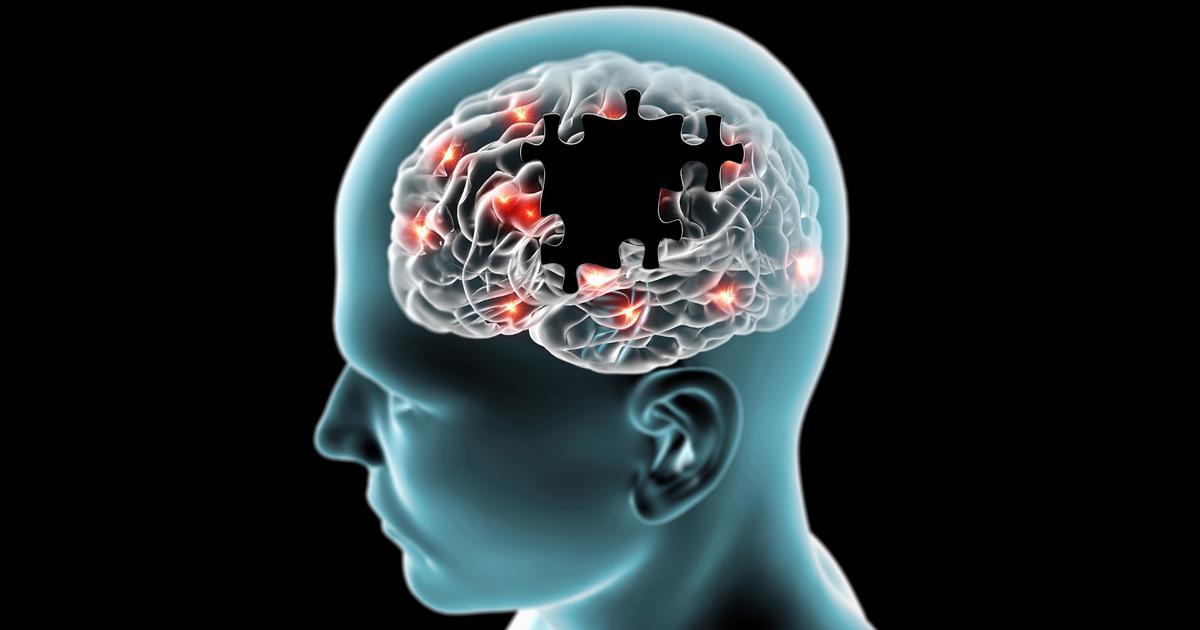 My Alzheimer - cover