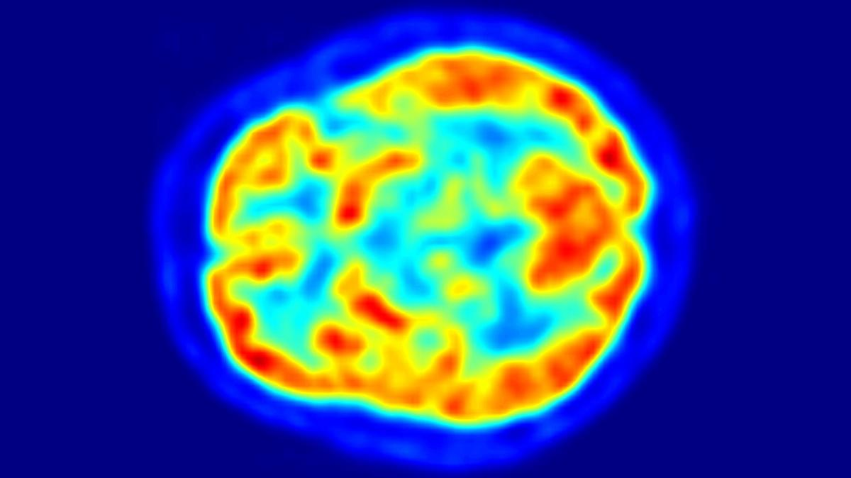 A new algorithm significantly outperformed human clinicians in predicting which patients would go on to develop Alzheimer's disease