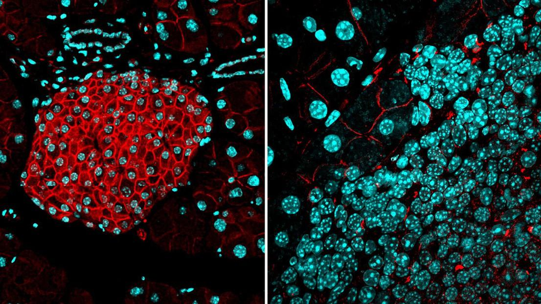 (Left) Normal expression of the protein activin B (red) in a healthy pancreas, which forms a barrier to cancer. (Right) Tumors can overcome that barrier by playing down the ALK7 pathway (cell nuclei are marked in cyan)