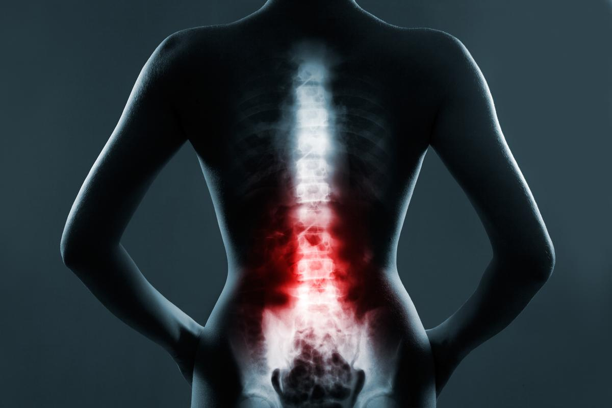 New research details 13 cases suggesting an experimental stem cell therapy is both safe and effective in treating spinal cord injury
