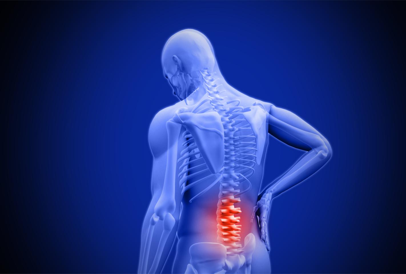 Scientists have found that a relatively new class of drugs known as senolytics can prevent spinal disc degeneration in mice