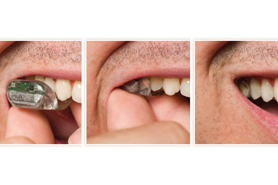 The SoundBite ITM device fits around the upper left or right teeth and is nearly invisible when in place