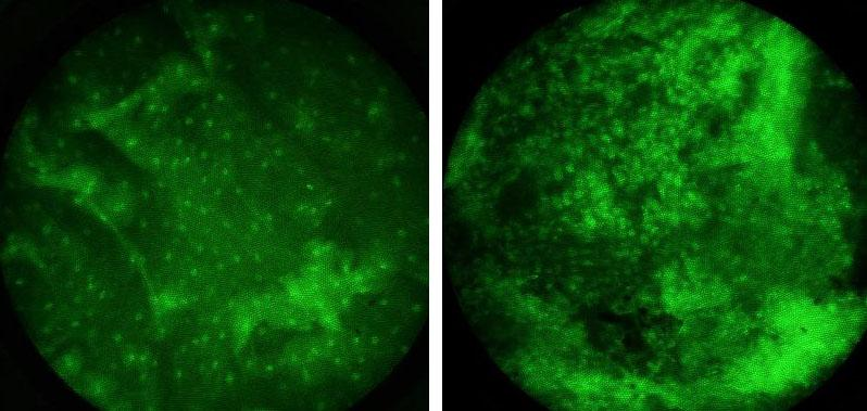 Cancer cells detected using $400 digital camera - In healthy tissue (left), the nuclei are small and widely spaced. The nuclei of cancer cells (right) are abnormally large and close together (Image: D. Shin/Rice University)