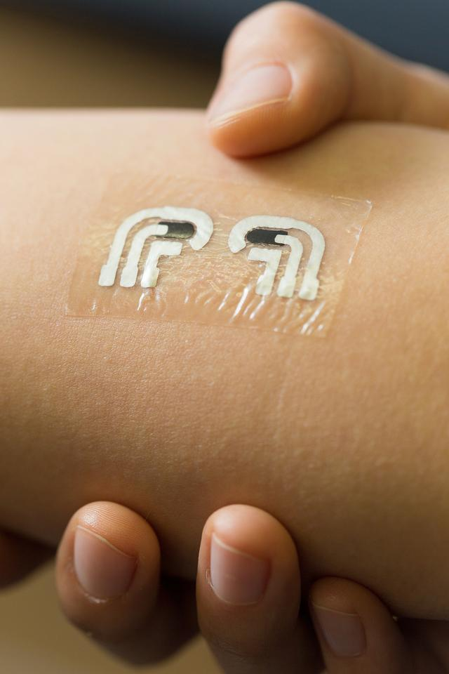 The tattoo measures glucose levels in fluid between the skin cells, which reflects levels in the bloodstream
