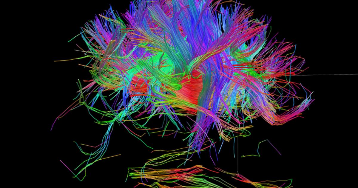 Wiring Diagram Of The Human Brain, Brain Wiring Diagram
