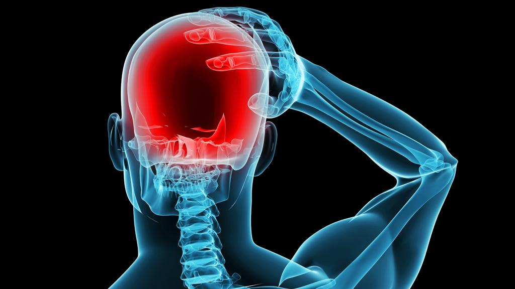 A new study has shown that transcranial direct current stimulation (tDCS) can prevent migraines from occurring (Image: Shutterstock)