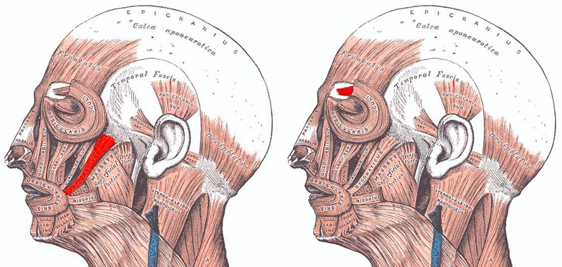 On the left hand head, the Zygomaticus facial muscle (smiling) is highlighted – on the right, the Corrugator supercilii facial muscle (frowning)