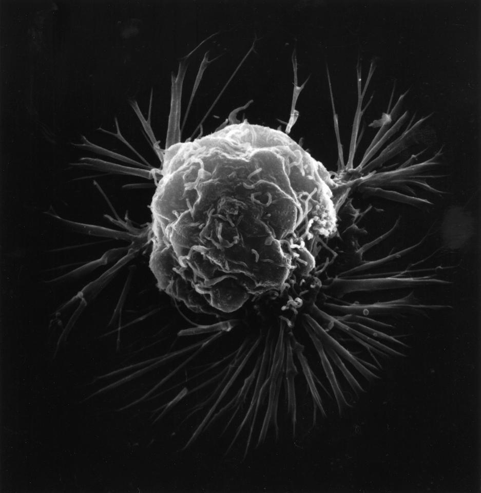 The team identified and cut off access to an essential supply of cancer cell nutrients, reducing growth by an astonishing 96 percent