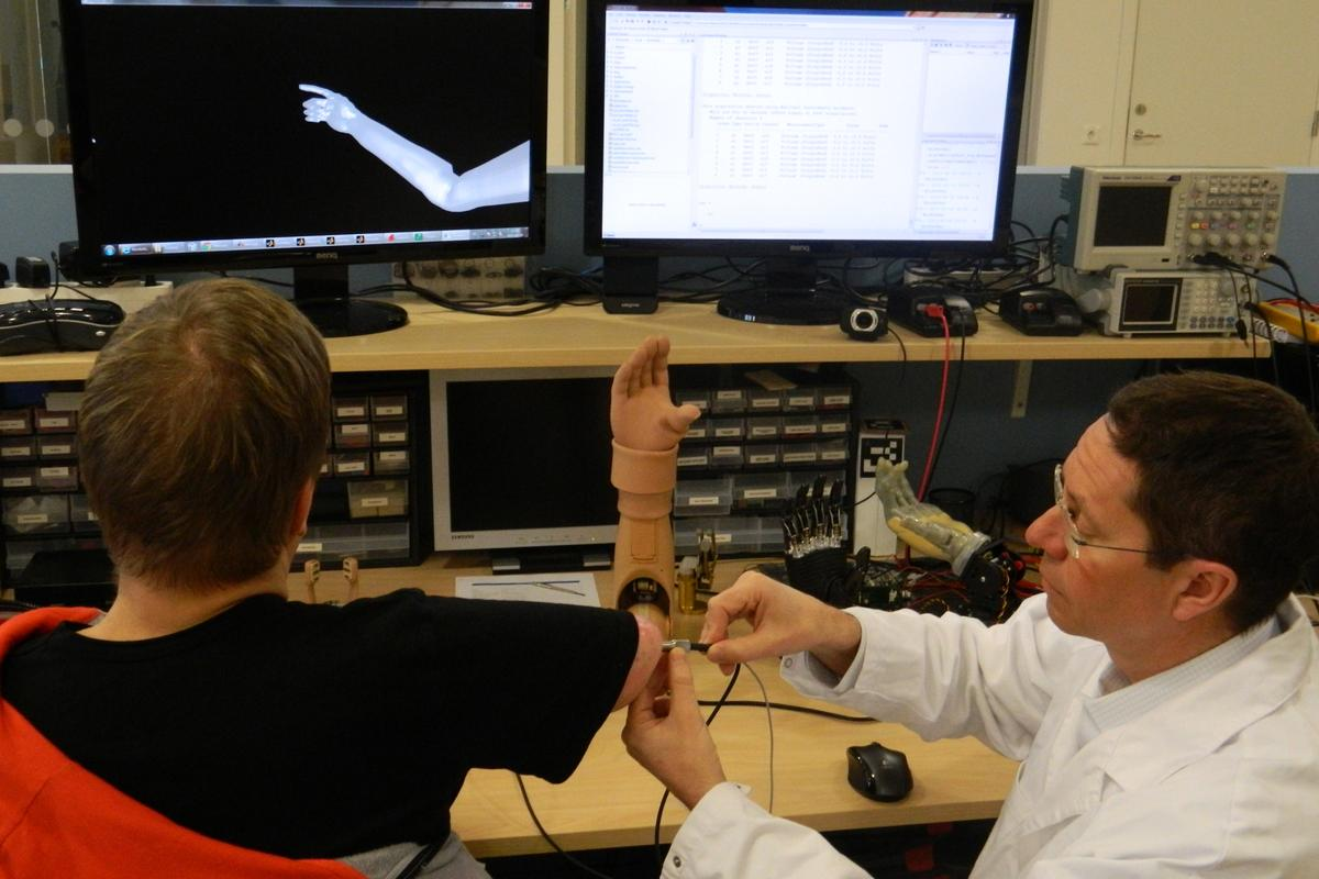 Dr Rickard Brånemark tests the functionality of the world's first muscle and nerve controlled arm prosthesis permanently implanted in an amputee