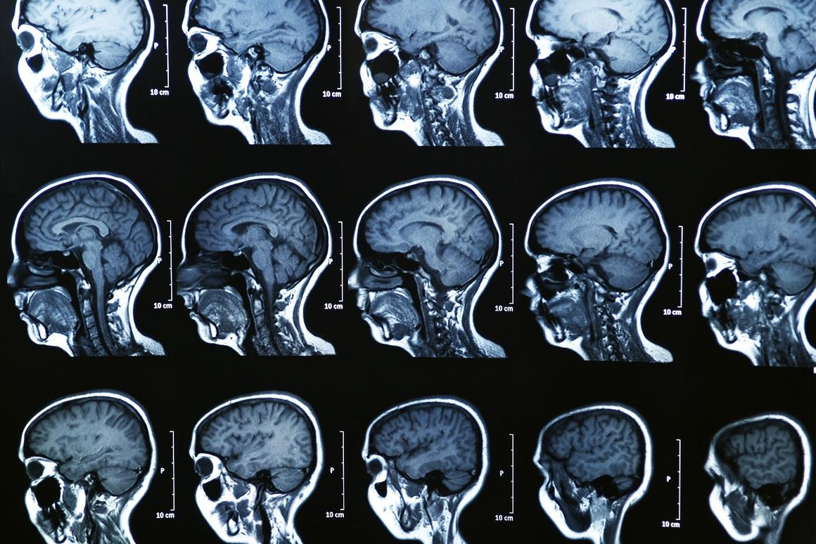 Brain scans could help scientists and lawyers determine a suspect's criminal intent