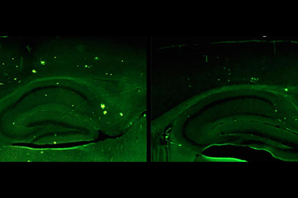 The researchers found that increasing levels of the protein Neuregulin-1 in the brain (seen here on the right), lowered levels of amyloid precursor proteins
