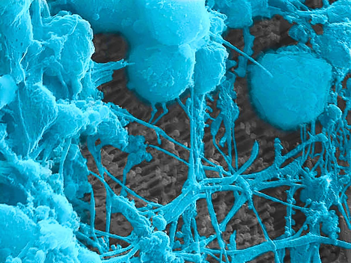 These neurons were cultured on a surface made up of nanowires, allowing them to interface with each other