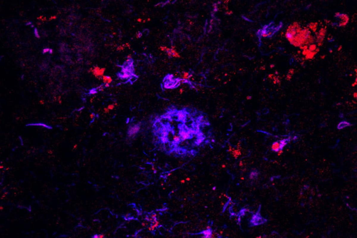 Antibodies (red) bind to the amyloid plaques (blue) in brain tissue
