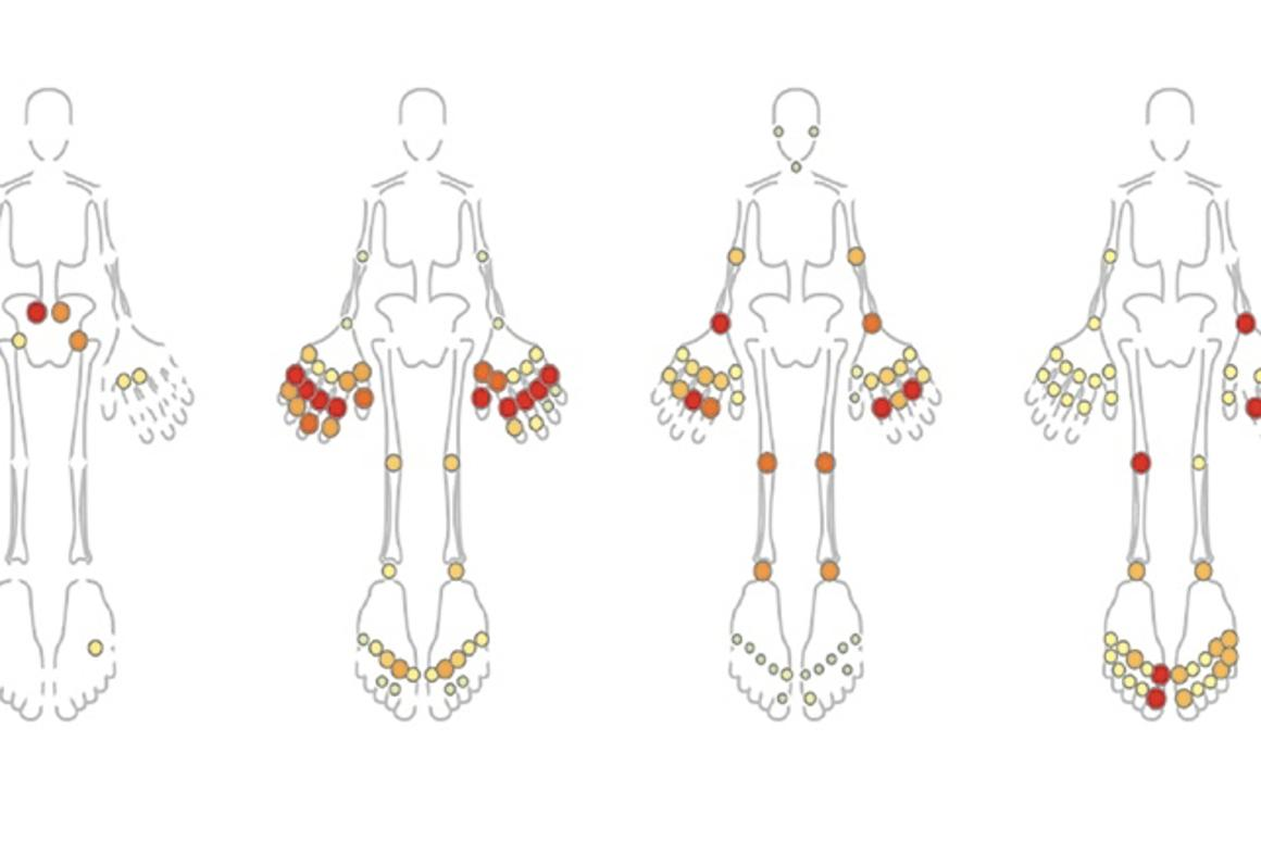 Machine learning algorithms sorted arthritic children into several groups, depending on the location of their joint pain