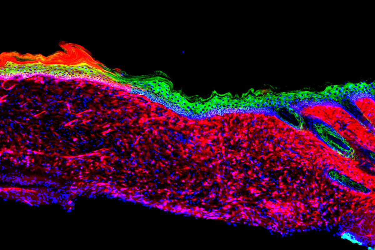 Salk Institute scientists converted one type of cell (seen in red) into basal keratinocytes (green), a precursor to healthy skin cells