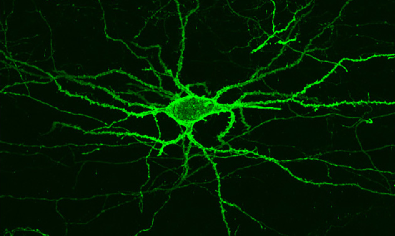 A new light-sensitive protein can be embedded into neuron membranes, where it emits a fluorescent lightthat could help neuroscientistsunderstandhow neurons connect and communicate inside the brain
