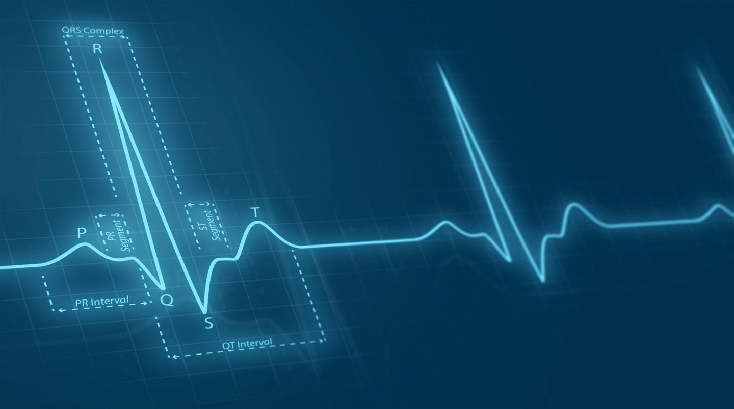 An AI system can effectively detect an early, pre-symptomatic stage of heart disease using simple electrocardiogram data