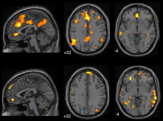 fMRI brain scans from UBC Mind Wandering Study(Image: Courtesy of Kalina Christoff)