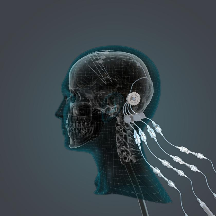 The Convection Enhanced Delivery system consists of four tubes implanted within the brain, all of which are fed by a single skull-mounted external delivery port