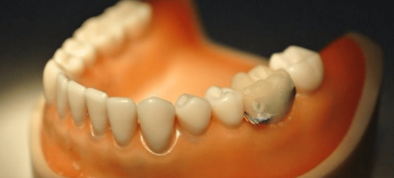 The sensor uses an accelerometer to monitor mouth activity