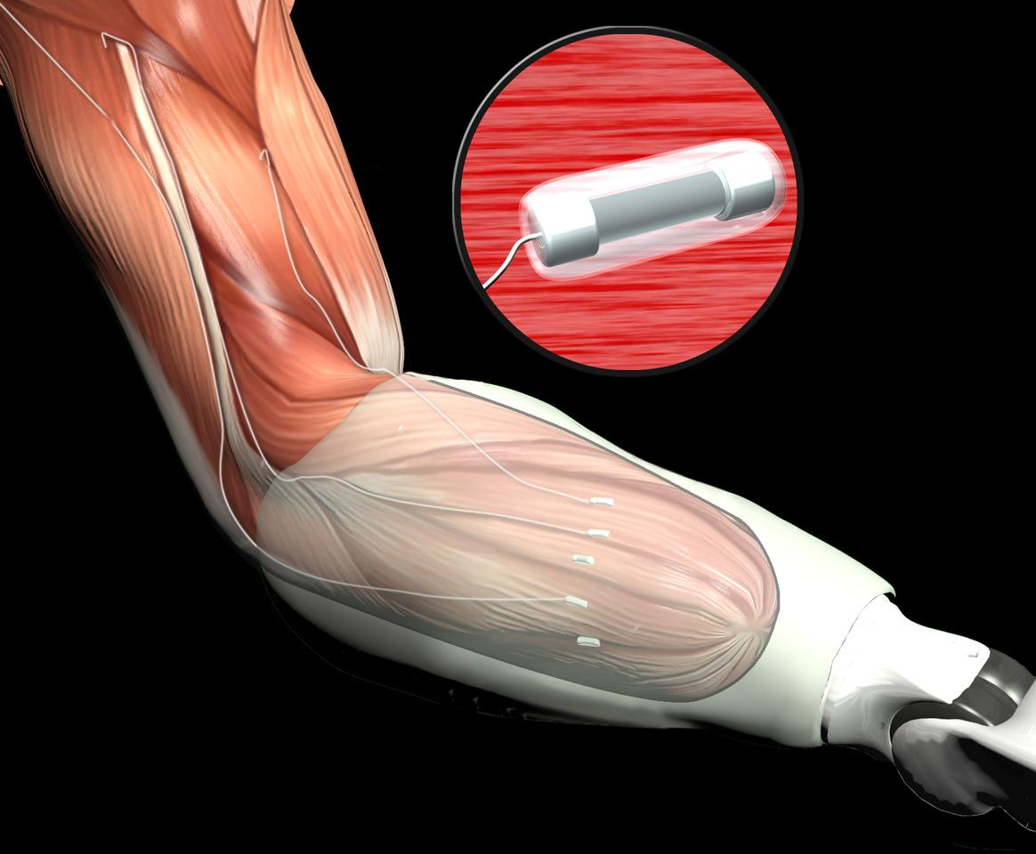 Artist's concept of Leaded Implantable Myoelectric Sensors, which are a part of Targeted Muscle Re-innervation