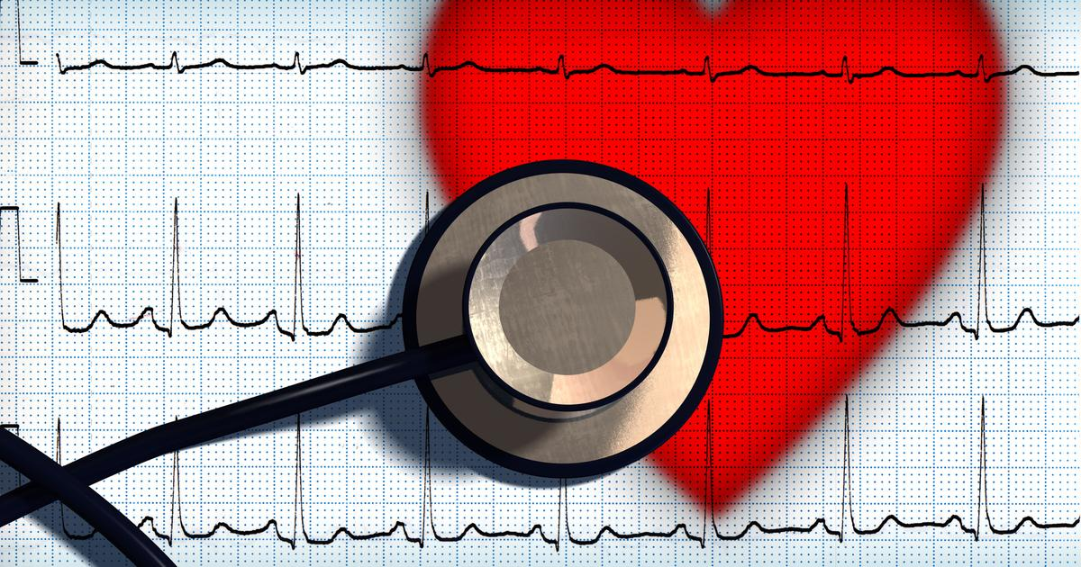 Study detects heart damage in majority of recovered COVID-19 patients