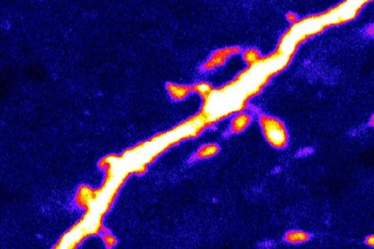 Dendric spines thattransmit signals between neurons couldshow scientistshow theprotein AMPKcommunicates with neurons that regulate hunger.