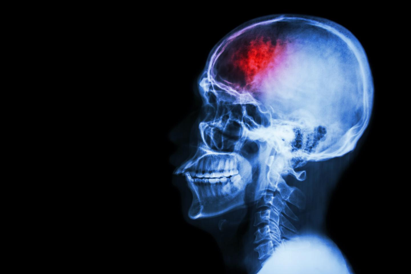 London researchers have revealed that stroke patients in a pilot study all showed improvements after stem cell therapy (Photo: Shutterstock)