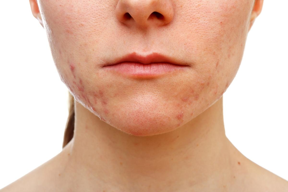 A new study suggests genes that influence acne also play a role in hair follicle formation