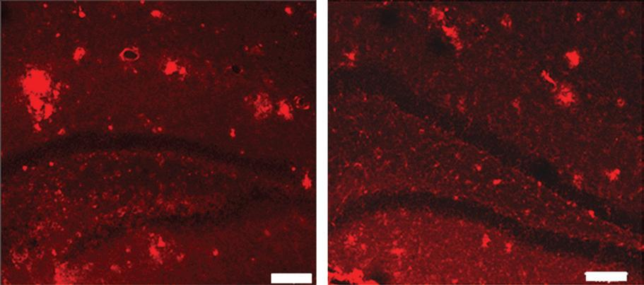 The plaque abnormalities on untreated transgenic mice (left) and the brain of a transgenic mouse that has been treated with MR imaging-guided focused ultrasound (right)(Image: Kullervo Hynynen, Sunnybrook Research Institute)