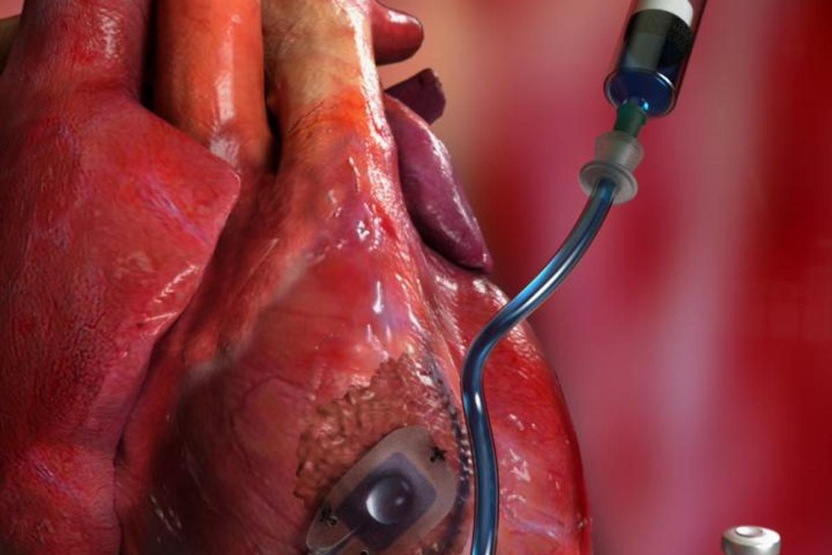 The Therepi medication-dispensing reservoir would be sutured onto the diseased heart tissue