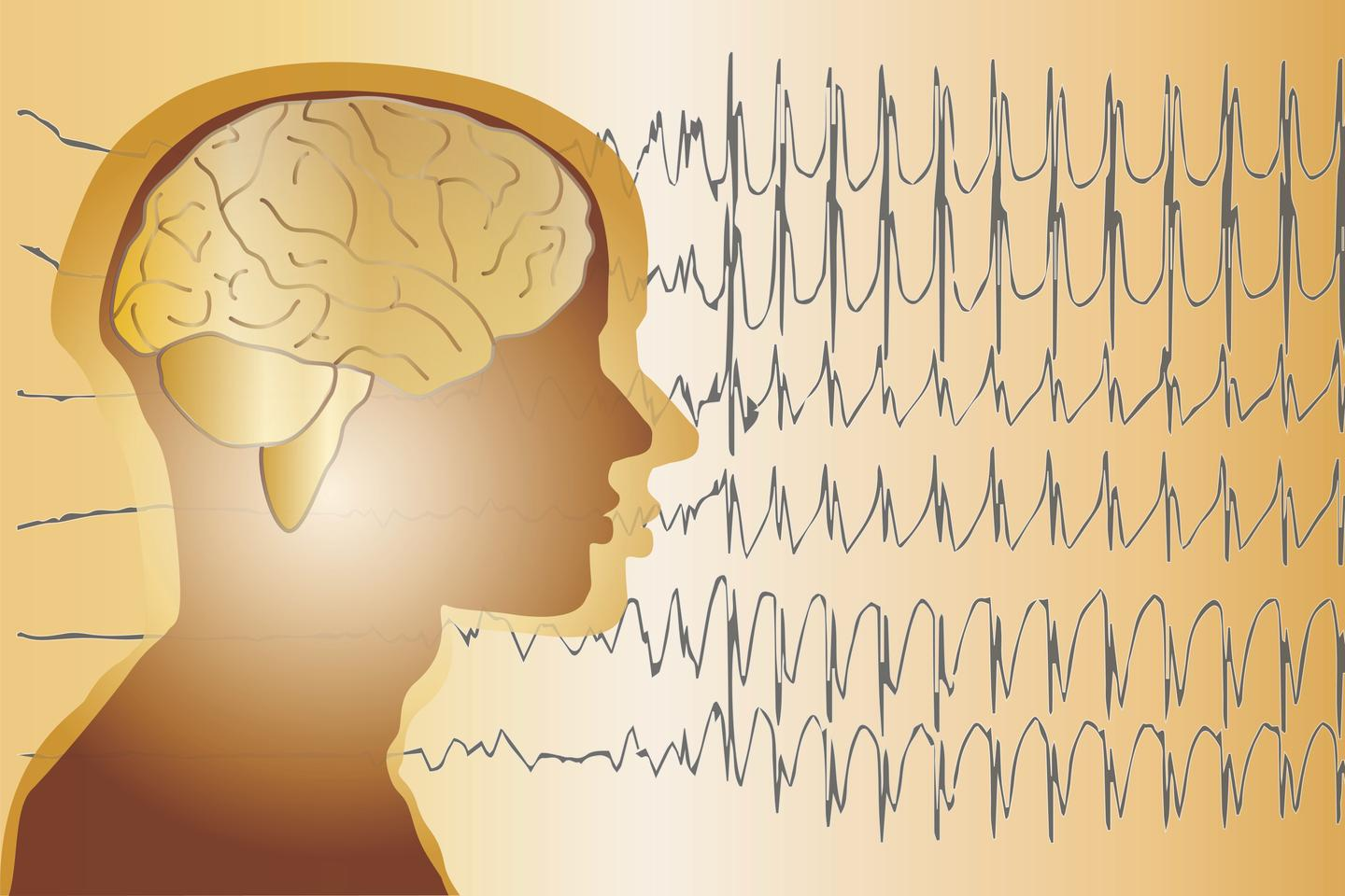 Unexpected epileptic seizures are not only unsettling, but they can also result in injuries