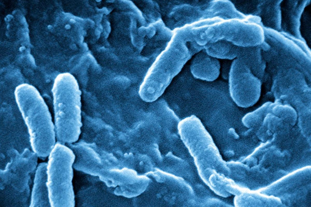Blue light has been used to kill potentially-lethal Pseudomonas aeruginosa bacteria (pictured) in the skin and soft tissues of lab mice