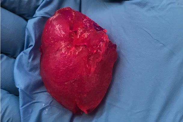 The bioprinted heart, seen here in the palm of a gloved hand