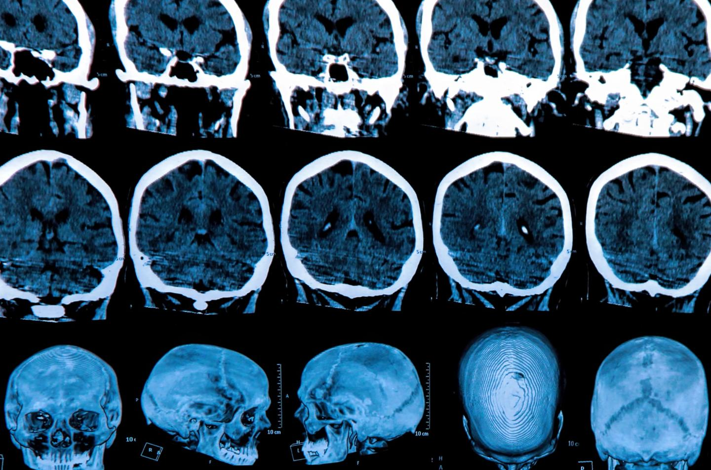 The same molecule that causes Huntington's disease has been found to have remarkable cancer-killing properties