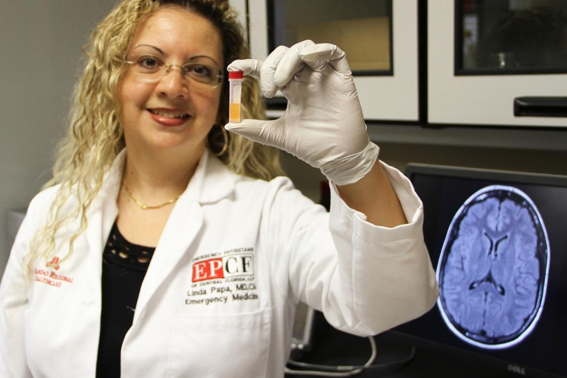 Linda Papa and her team at Orlando Health have developed a blood test that can reveal concussions up to seven days after an impact