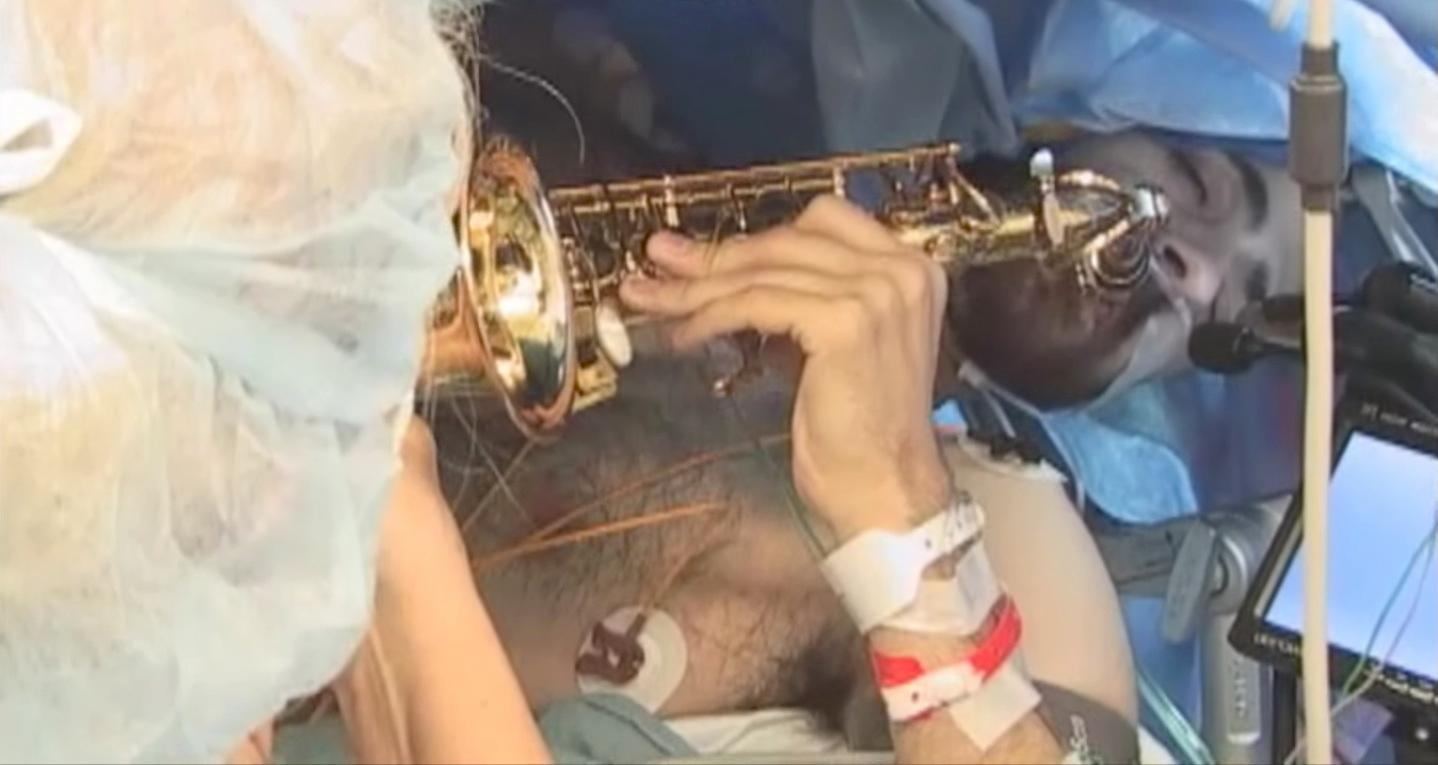 Musician and music teacher Dan Fabbio played the saxophone during brain surgery, to help prevent doctors damaging the parts of his brain associated with musical processing