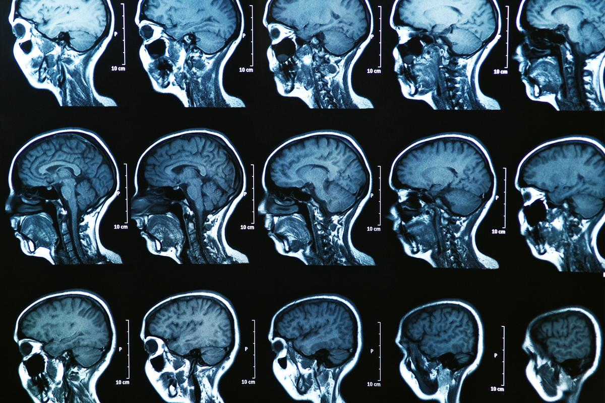 AI analysis of MRI brain scans have identified three new subtypes of multiple sclerosis