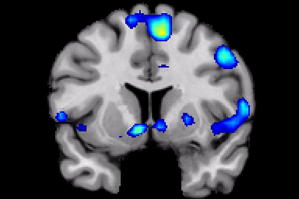 A scan shows regions of the brain that become active when devoutly religious study participants have a spiritual experience