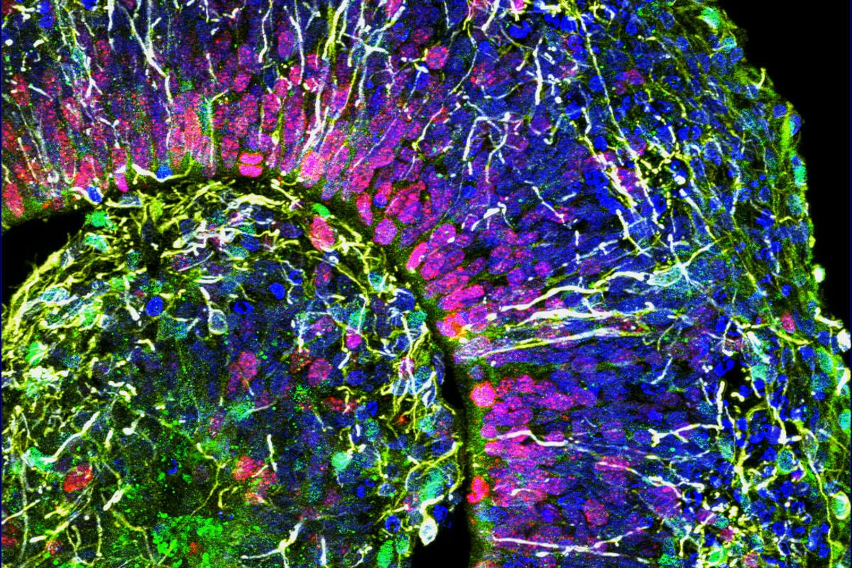 A cross-section of a mini-brain. Different colors indicate different types of brain cells.
