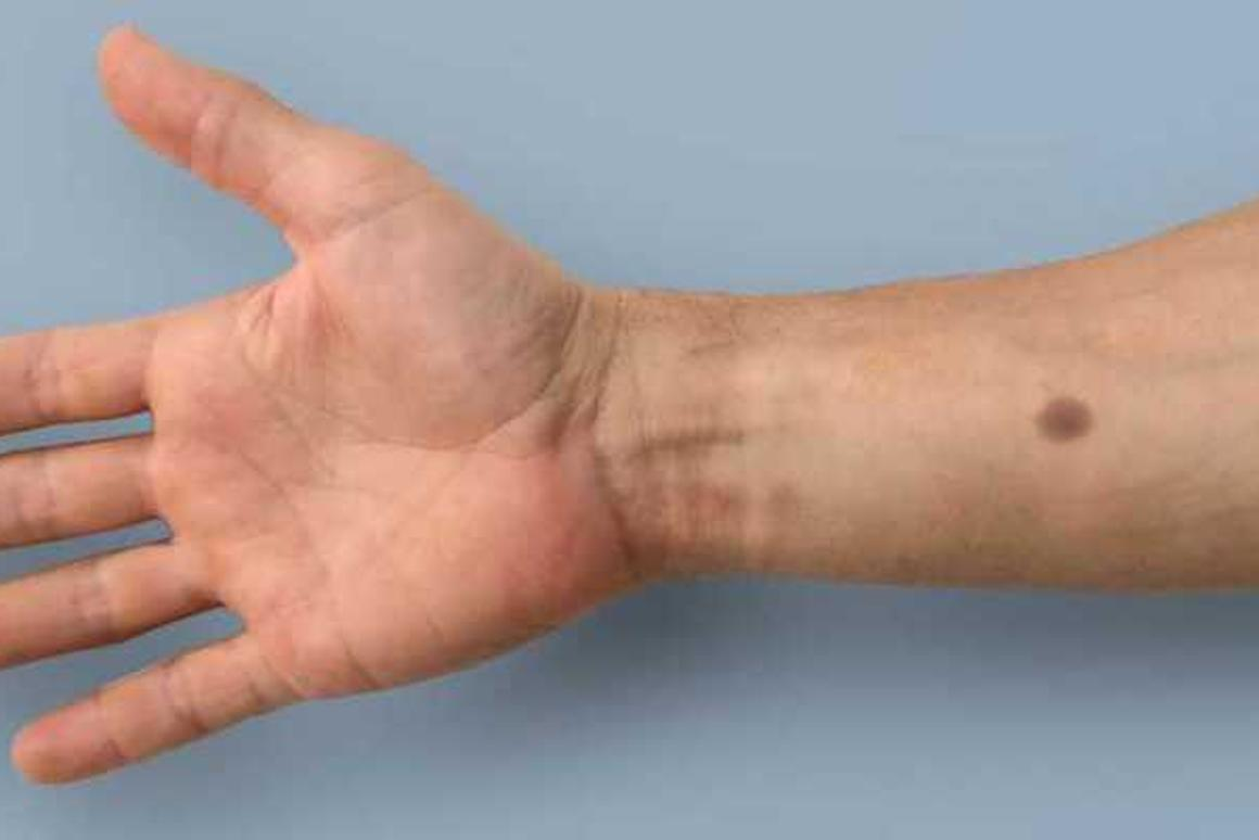 Researchers at ETHZurich have developed an early warning system for cancer that grows an artificial mole on your skin when it detects certain biomarkers