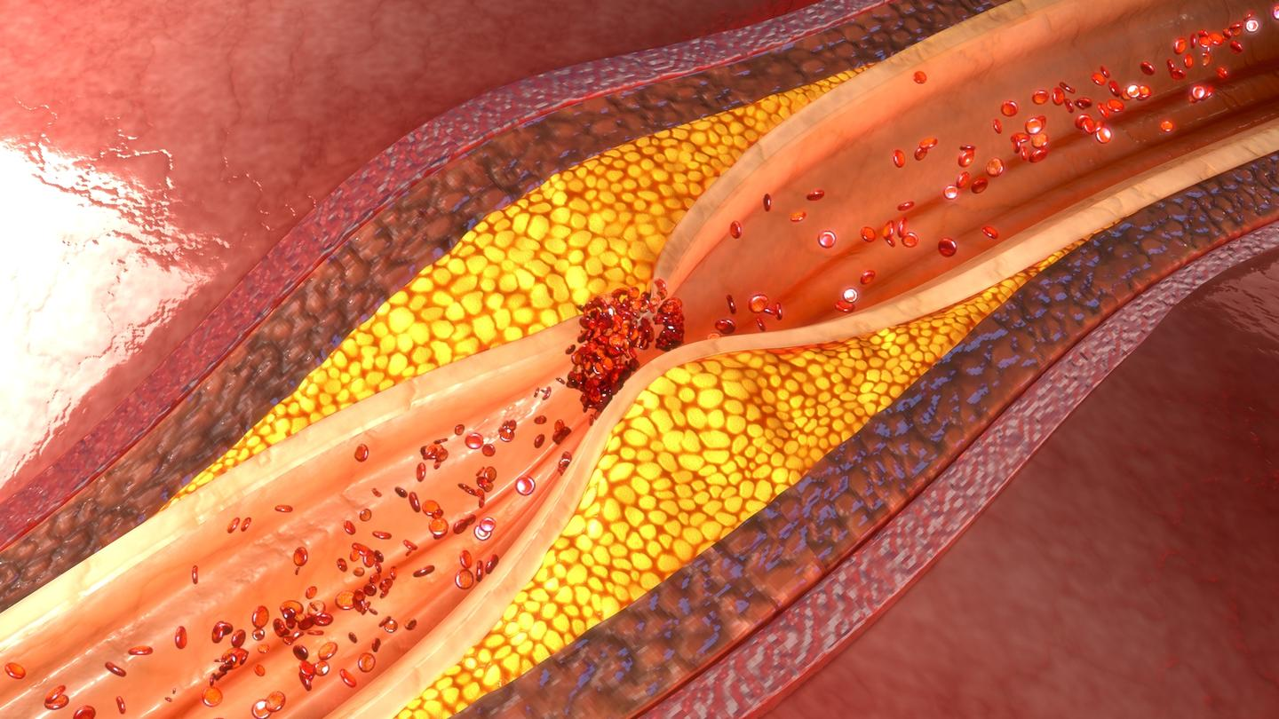 Researchers have discovered a protein that could be targeted to prevent plaque buildup in arteries