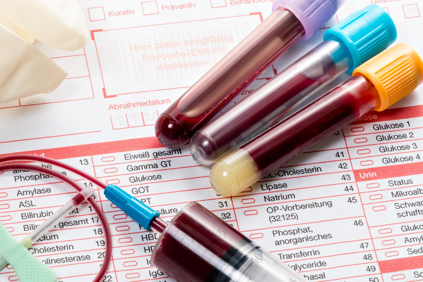 A new blood test for cancer has shown great promise in a new study, with the ability to detect more than 20 types of cancer