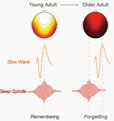 An illustration showing how the brainwaves of the young subjects sync up during sleep while older subjects fall out of sync resulting in less memories being consolidated successfully