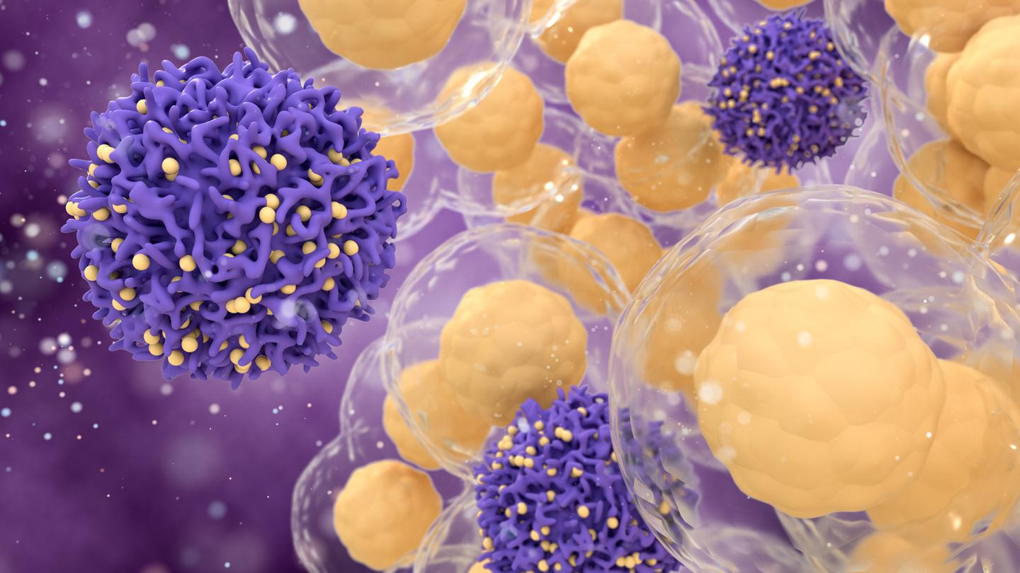 Cancer cells could meet their match through a recently discovered form of cell death known as ferroptosis, and researchers have just discovered a new trigger for it in the form of a fatty acid